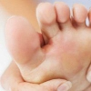 Грибок між пальцями ніг, лікування і причини захворювання