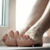 Червоні плями на ногах, причина їх появи і усунення
