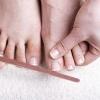 Мікоз нігтів, лікування цього грибкового захворювання